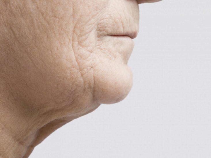 هایفوتراپی چگونه به جوان سازی پوست کمک می کند؟