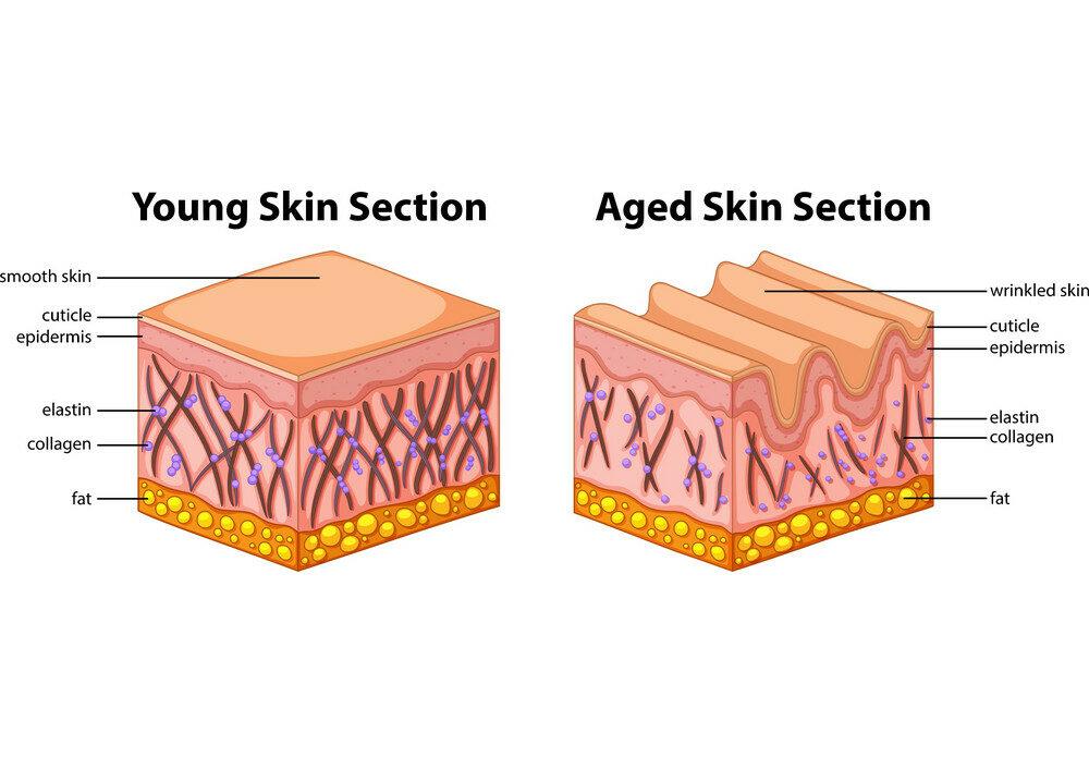 از دست رفتن کلاژن و الاستین پوست منجر به شل و پژمرده شدن پوست و ایجاد خطوط و چروکهایی در ساختمان آن میشود.